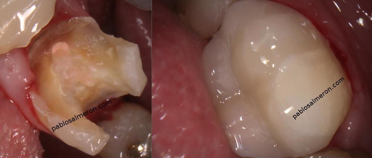 segundo molar inferior