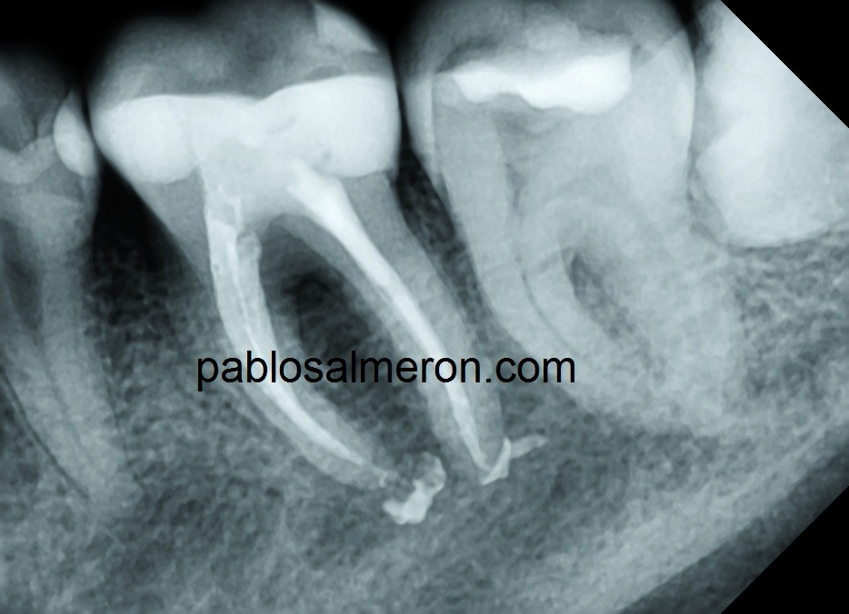 Madibular first molar